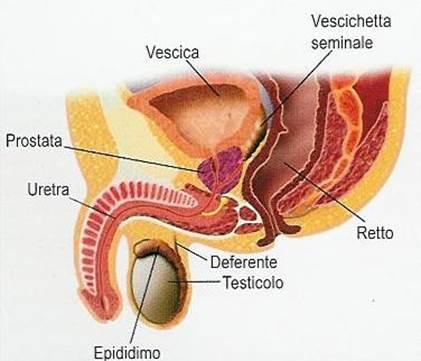 trattamento per prostata non chirurgica