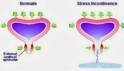 Incontinenza urinaria maschile dopo rapporti sessuali