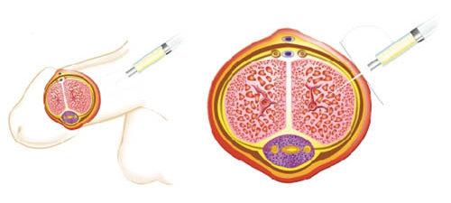 Iniezioni intracavernose PRP