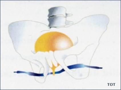 Incontinenza urinaria femminile nell'anziano
