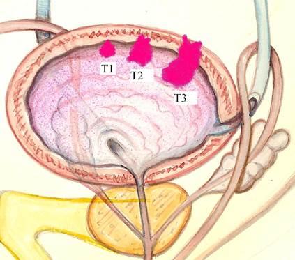 carcinoma prostata e vescica