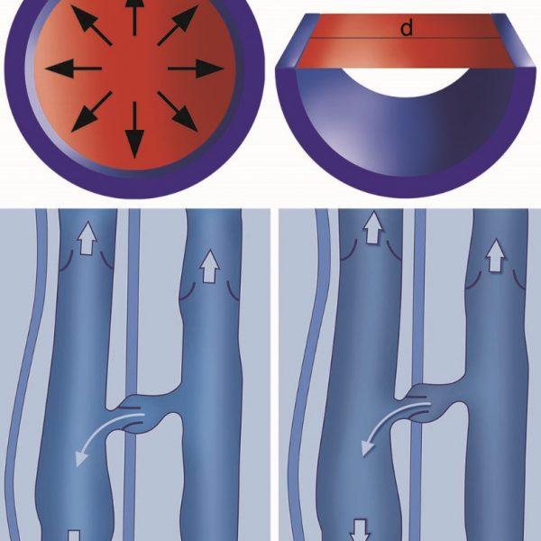 vene: ipertensione emodinamica