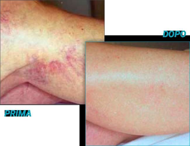 trattamento vene varicose prima e dopo