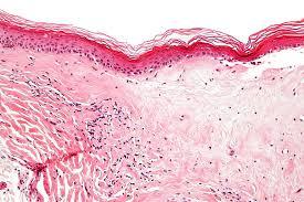 Lichen scleroatrofico